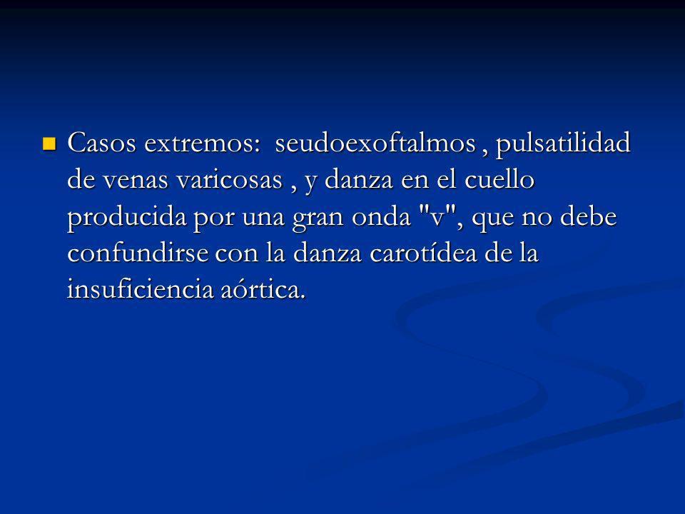 Casos extremos: seudoexoftalmos , pulsatilidad de venas varicosas , y danza en el cuello producida por una gran onda v , que no debe confundirse con la danza carotídea de la insuficiencia aórtica.