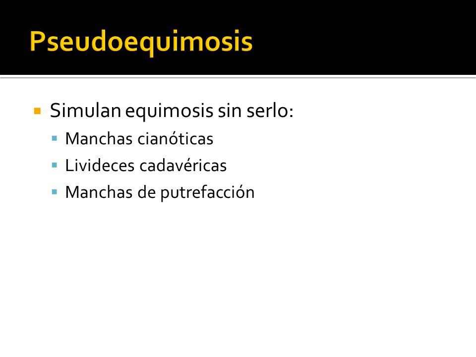 Pseudoequimosis Simulan equimosis sin serlo: Manchas cianóticas