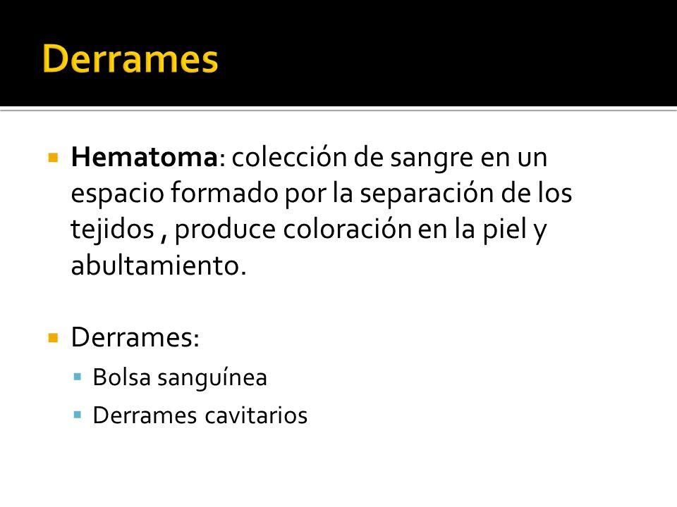 Derrames Hematoma: colección de sangre en un espacio formado por la separación de los tejidos , produce coloración en la piel y abultamiento.