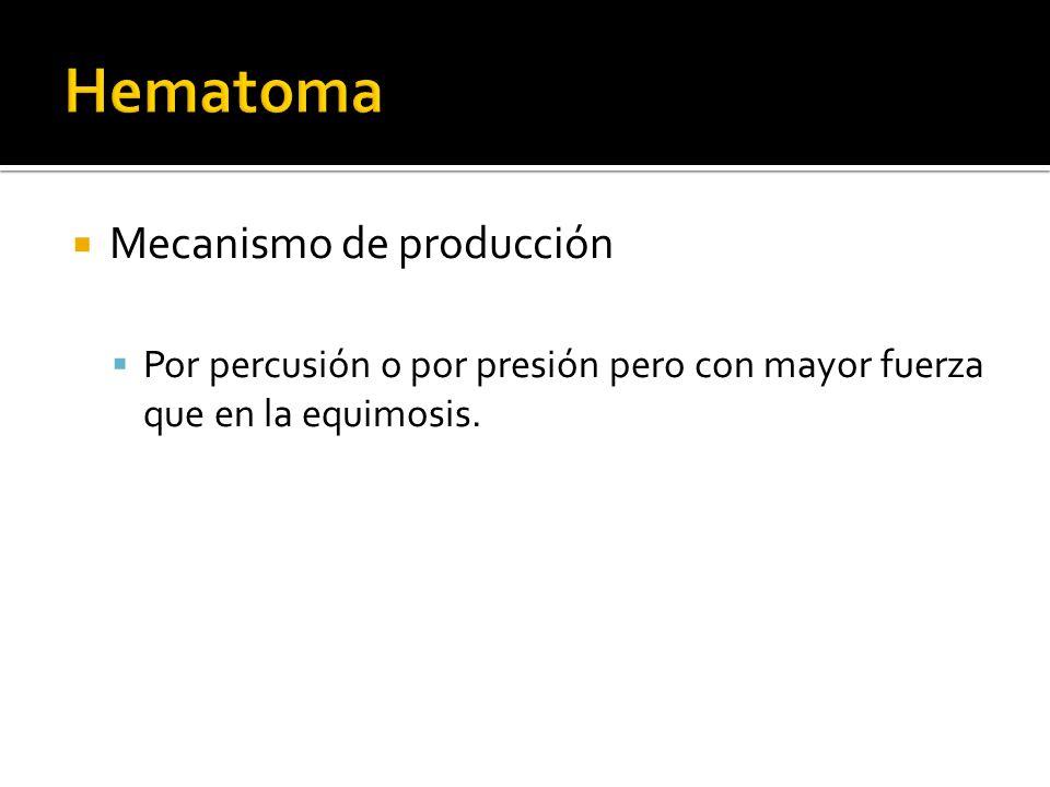 Hematoma Mecanismo de producción