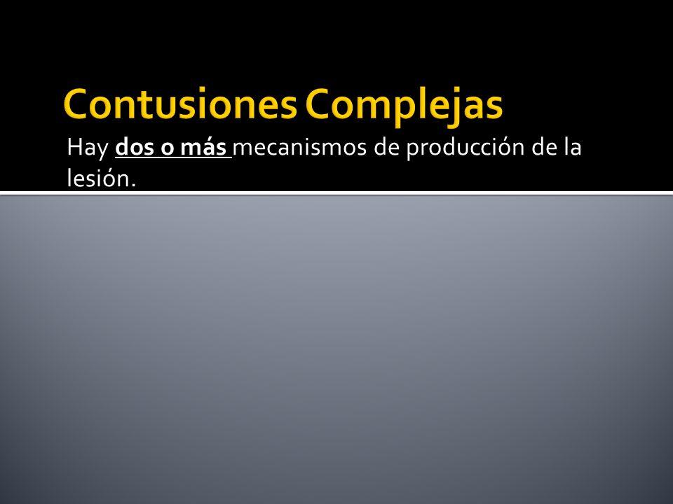 Contusiones Complejas