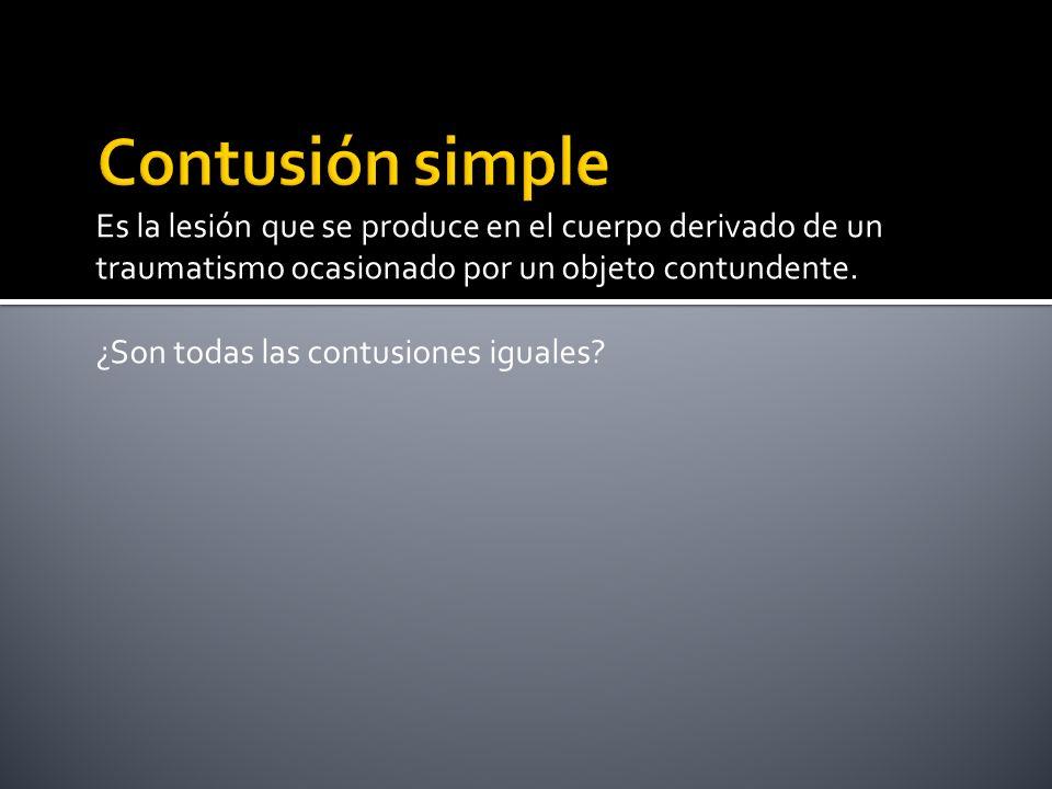 Contusión simple Es la lesión que se produce en el cuerpo derivado de un traumatismo ocasionado por un objeto contundente.