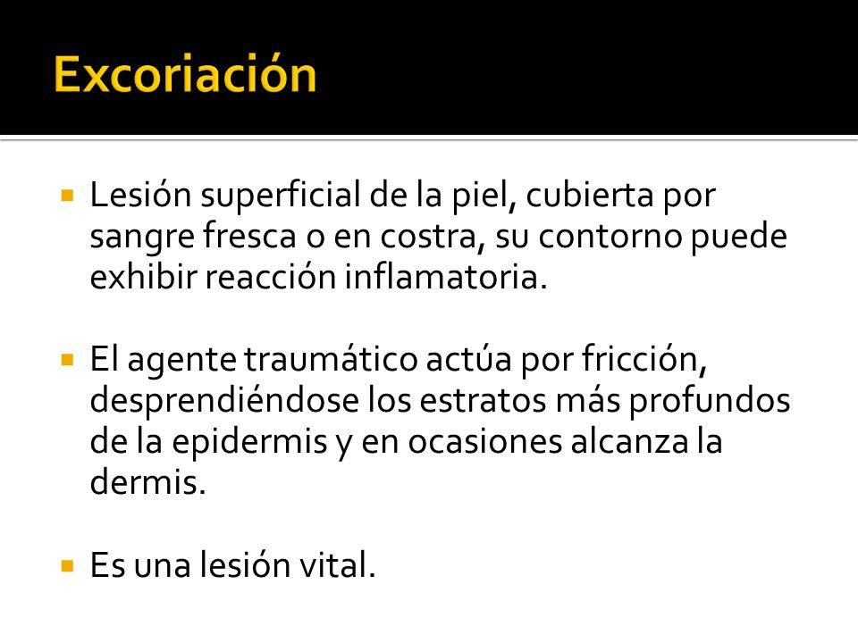 Excoriación Lesión superficial de la piel, cubierta por sangre fresca o en costra, su contorno puede exhibir reacción inflamatoria.