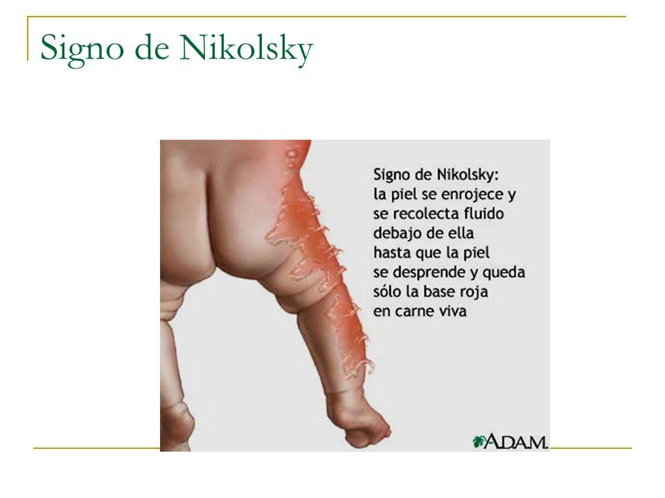 Signo de Nikolsky