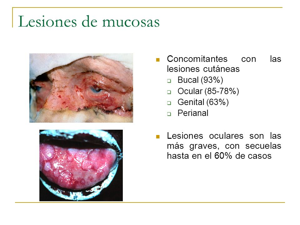 Lesiones de mucosas Concomitantes con las lesiones cutáneas