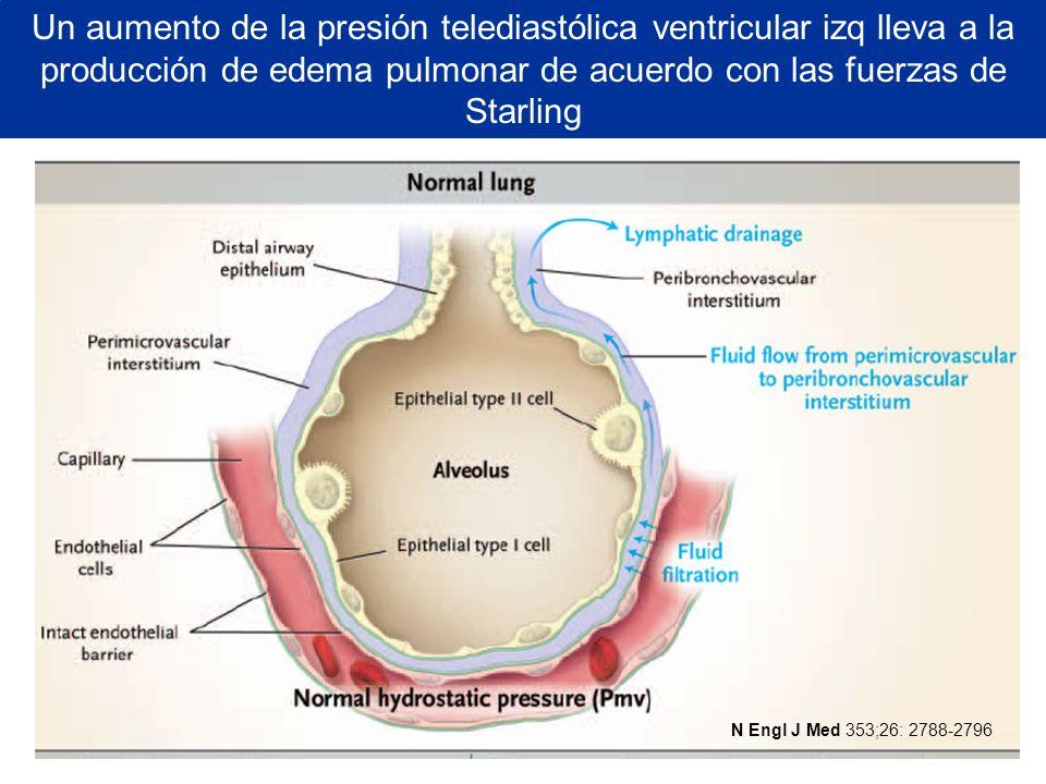 Un aumento de la presión telediastólica ventricular izq lleva a la producción de edema pulmonar de acuerdo con las fuerzas de Starling