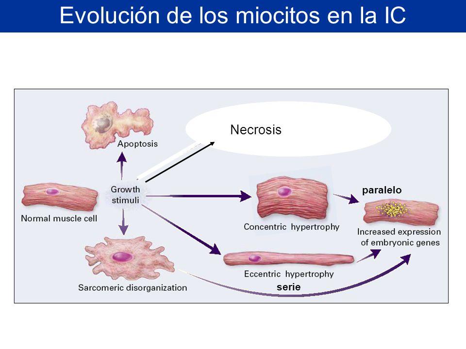 Evolución de los miocitos en la IC