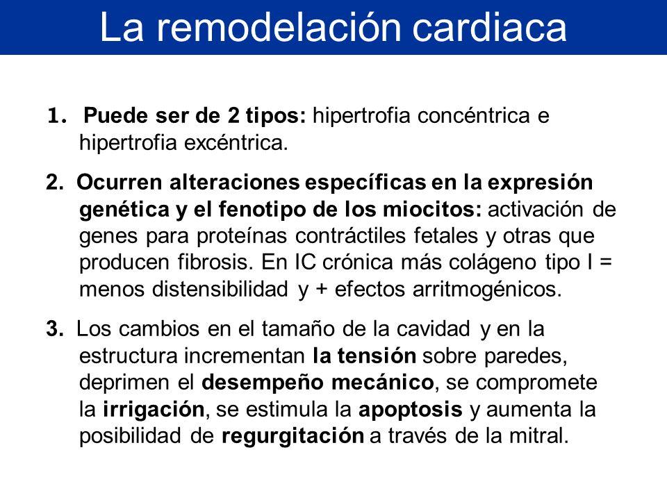 La remodelación cardiaca