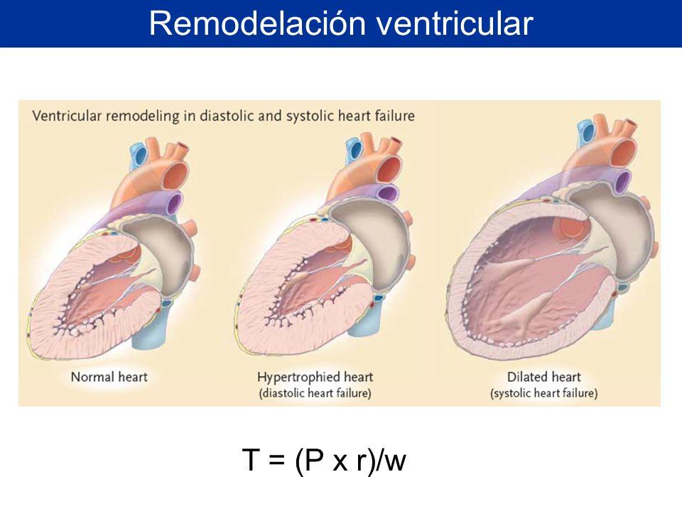 Remodelación ventricular