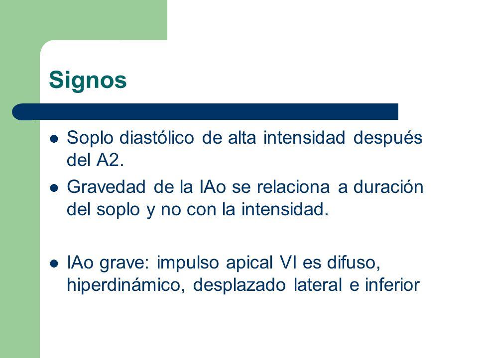 Signos Soplo diastólico de alta intensidad después del A2.