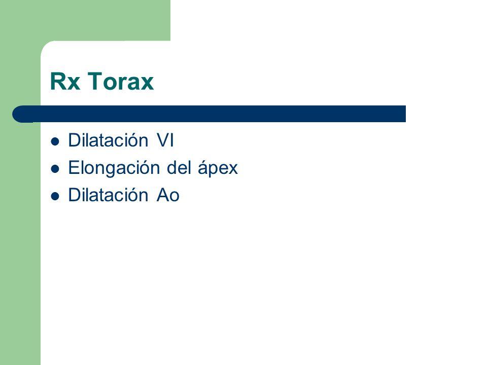 Rx Torax Dilatación VI Elongación del ápex Dilatación Ao
