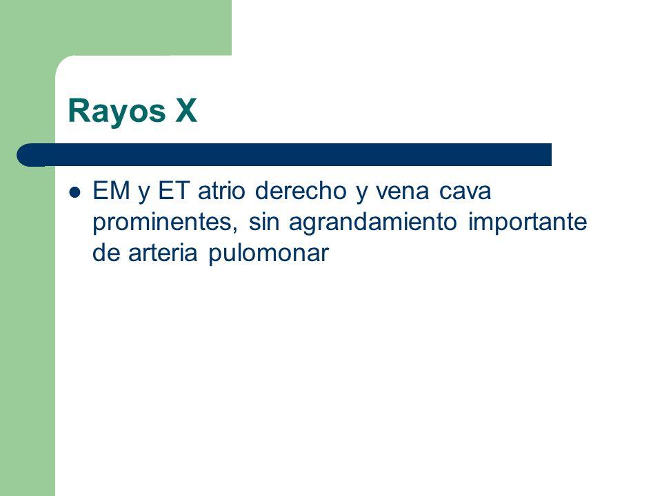 Rayos X EM y ET atrio derecho y vena cava prominentes, sin agrandamiento importante de arteria pulomonar.