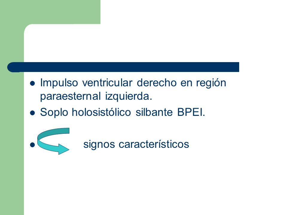 Impulso ventricular derecho en región paraesternal izquierda.