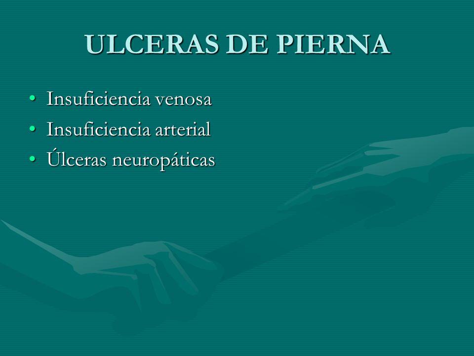 ULCERAS DE PIERNA Insuficiencia venosa Insuficiencia arterial