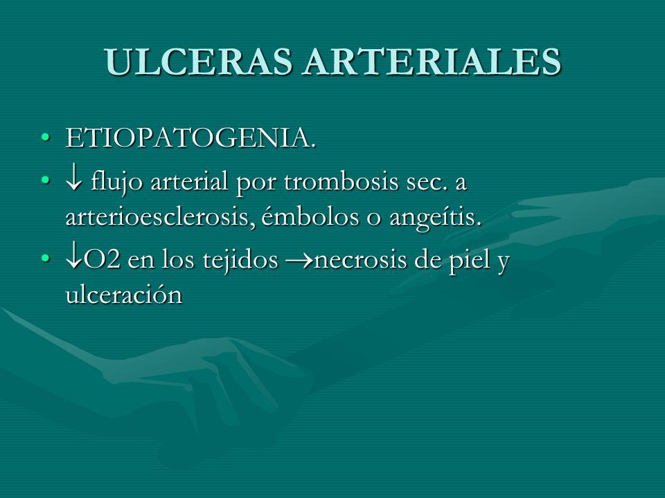 ULCERAS ARTERIALES ETIOPATOGENIA.