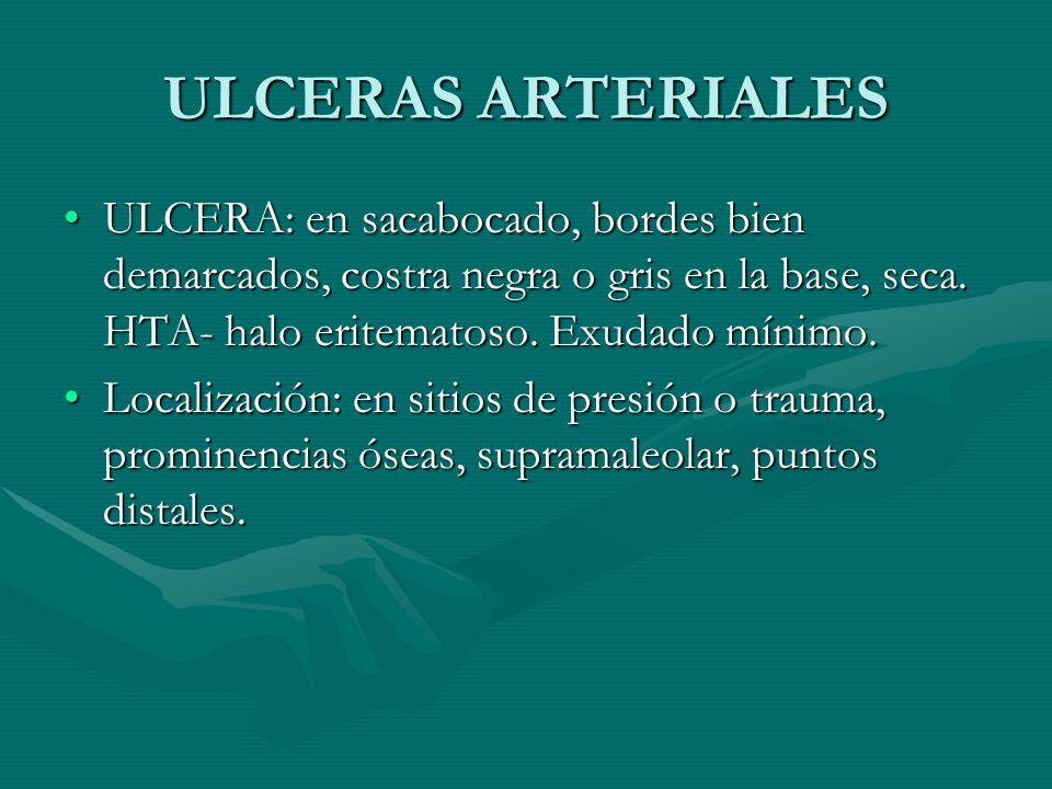 ULCERAS ARTERIALES ULCERA: en sacabocado, bordes bien demarcados, costra negra o gris en la base, seca. HTA- halo eritematoso. Exudado mínimo.
