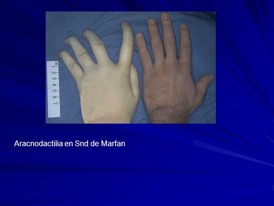 Aracnodactilia en Snd de Marfan