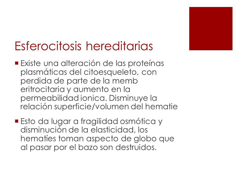 Esferocitosis hereditarias