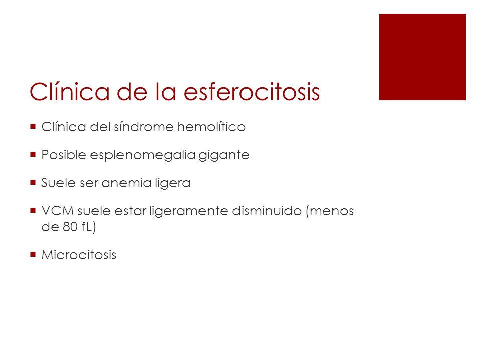 Clínica de la esferocitosis