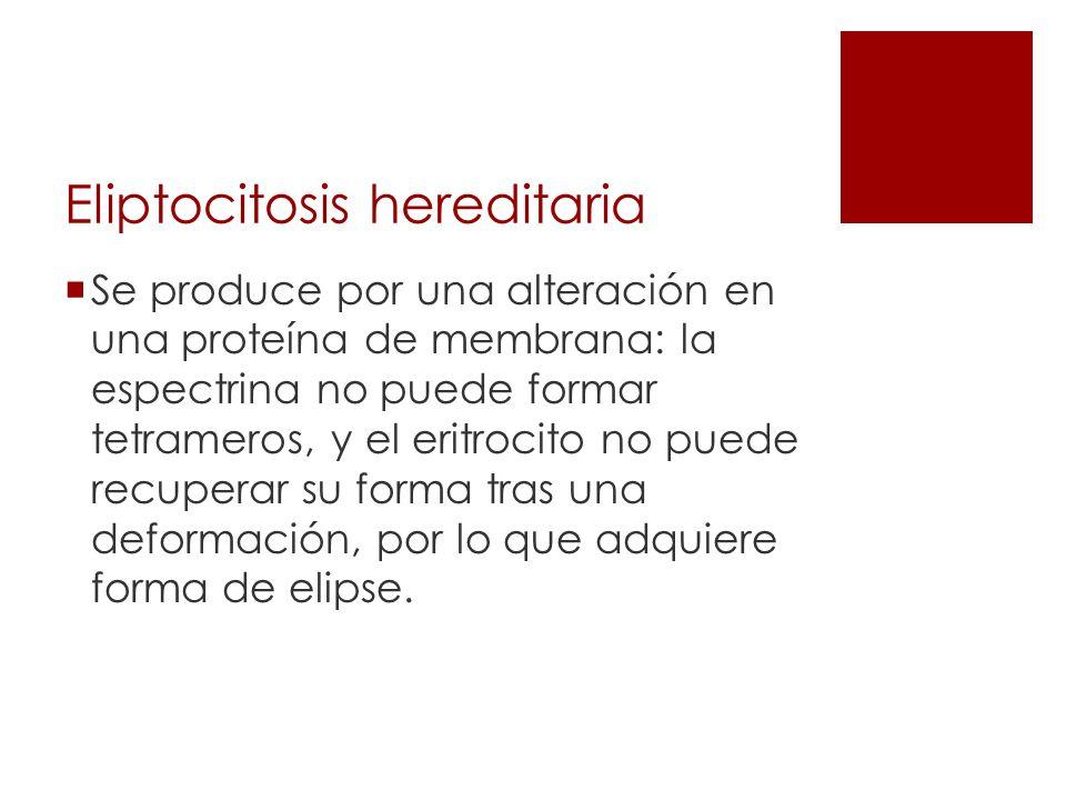 Eliptocitosis hereditaria