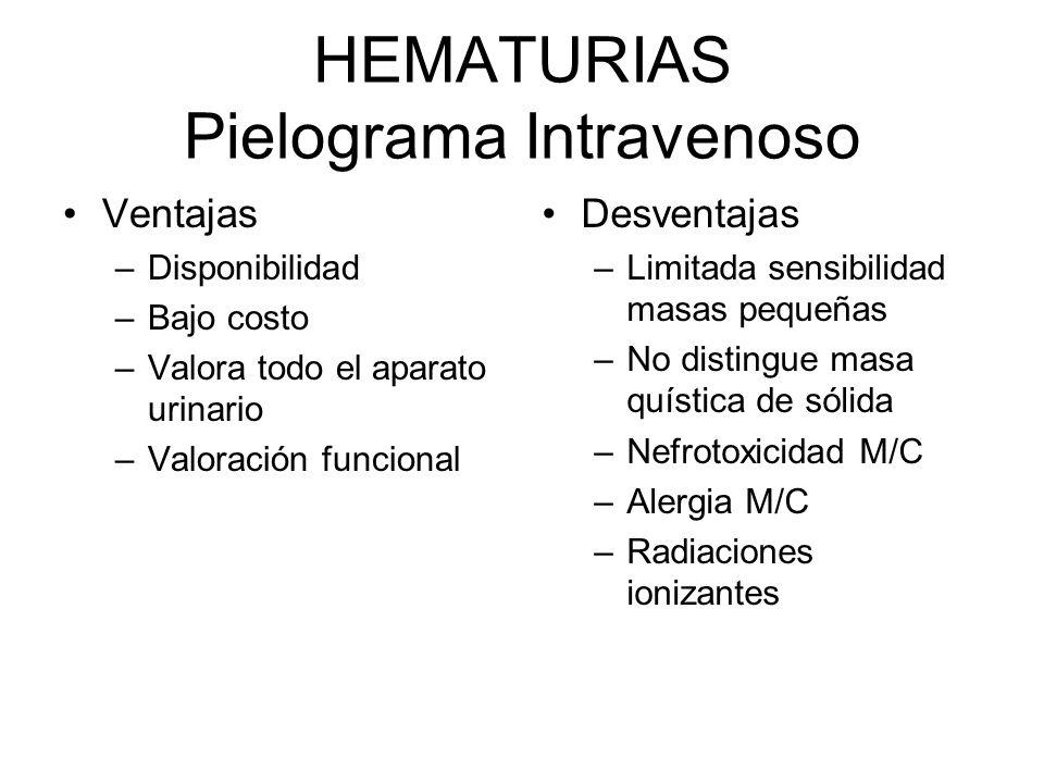 HEMATURIAS Pielograma Intravenoso
