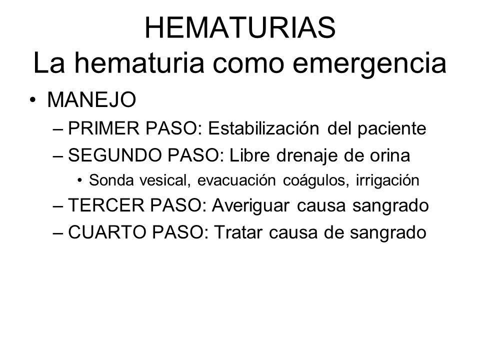 HEMATURIAS La hematuria como emergencia