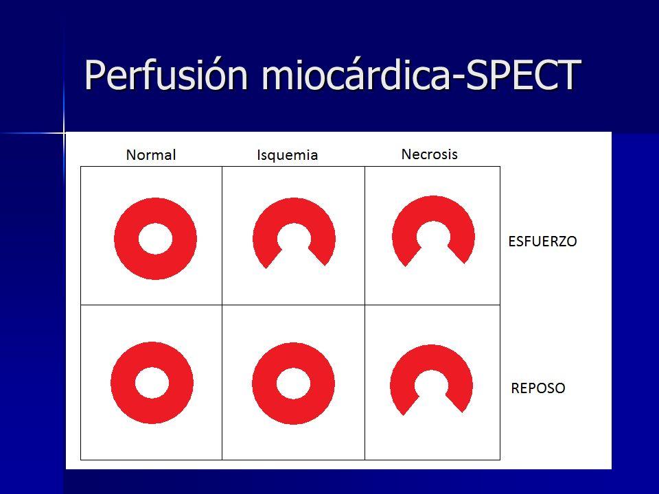 Perfusión miocárdica-SPECT
