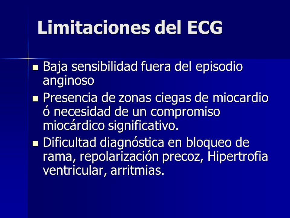 Limitaciones del ECG Baja sensibilidad fuera del episodio anginoso