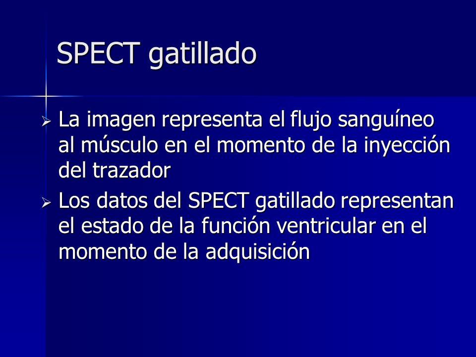 SPECT gatillado La imagen representa el flujo sanguíneo al músculo en el momento de la inyección del trazador.