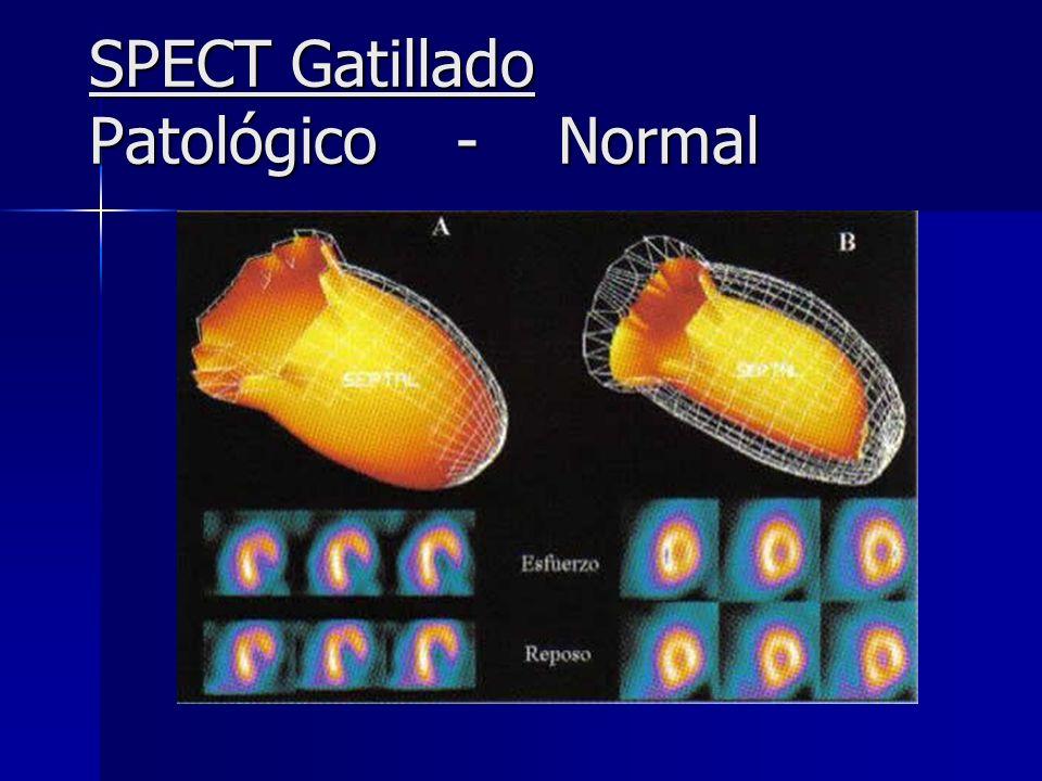 SPECT Gatillado Patológico - Normal