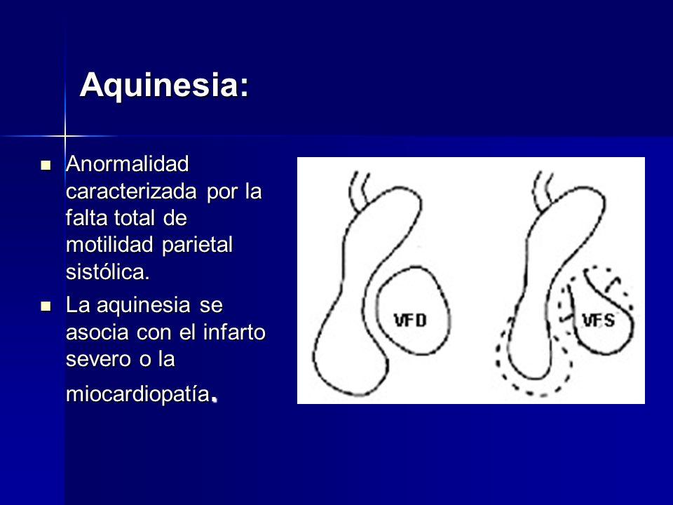 Aquinesia: Anormalidad caracterizada por la falta total de motilidad parietal sistólica.