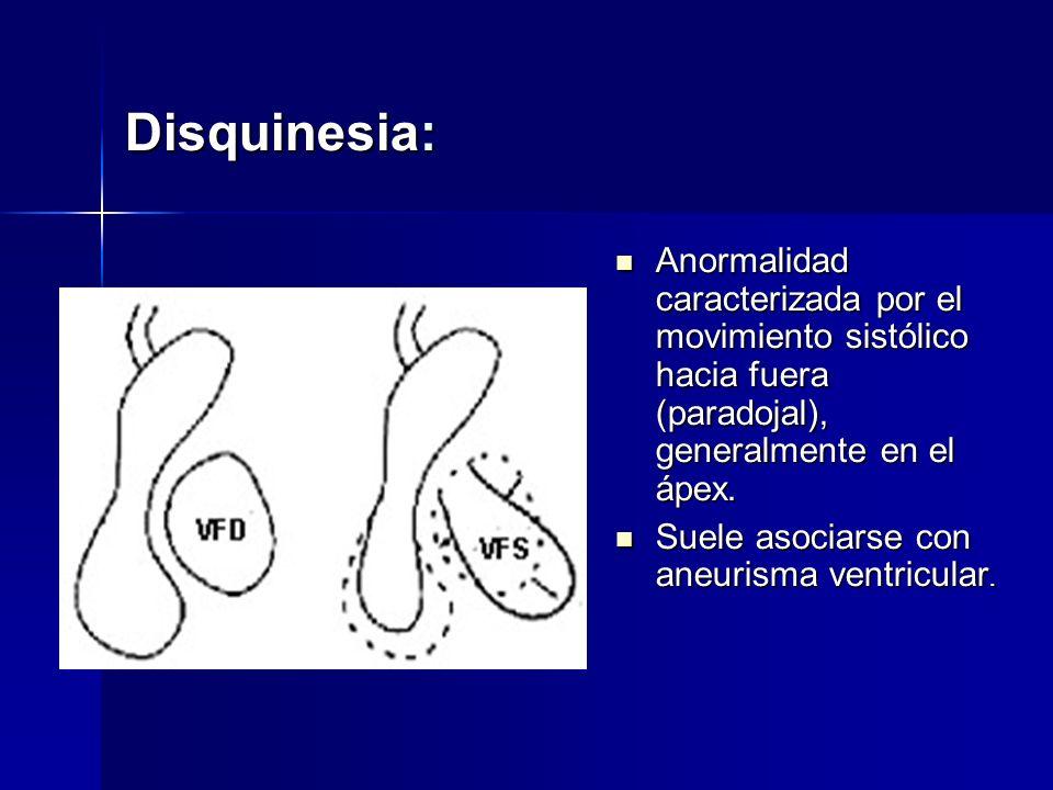 Disquinesia: Anormalidad caracterizada por el movimiento sistólico hacia fuera (paradojal), generalmente en el ápex.