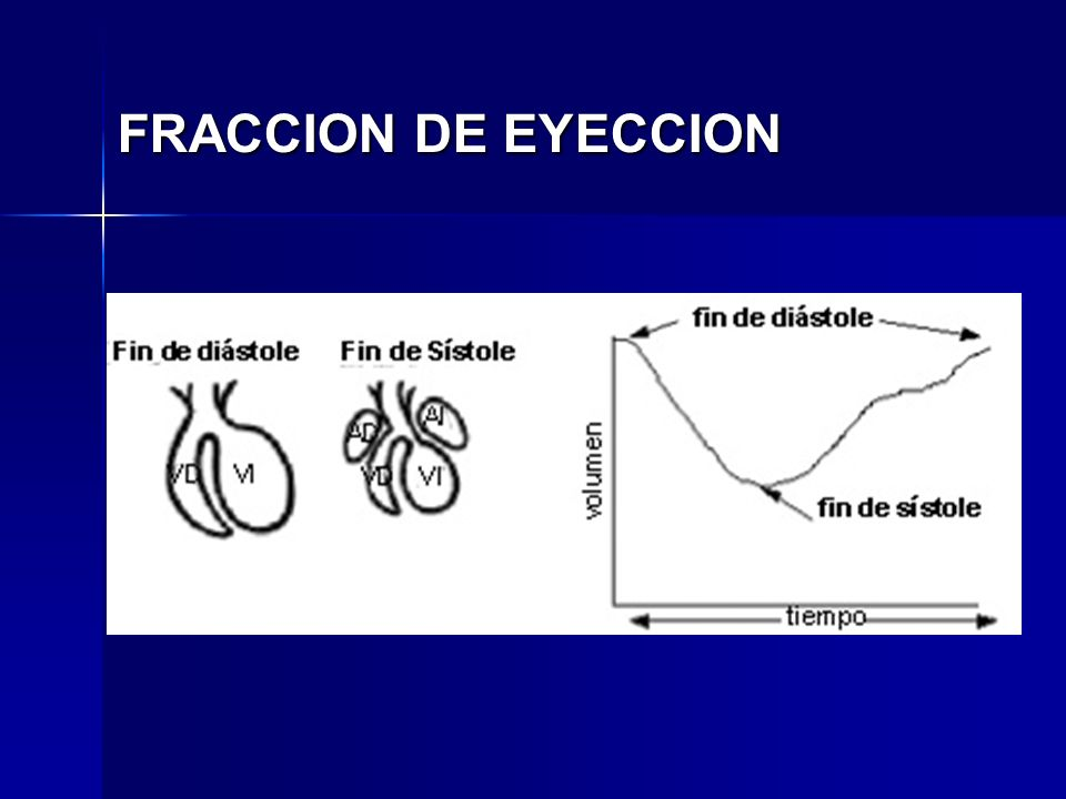FRACCION DE EYECCION