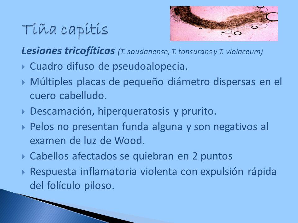 Tiña capitis Lesiones tricofíticas (T. soudanense, T. tonsurans y T. violaceum) Cuadro difuso de pseudoalopecia.