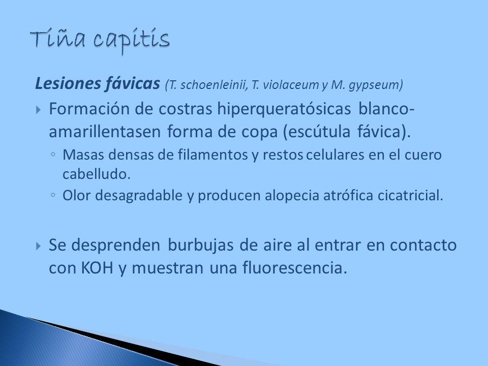 Tiña capitis Lesiones fávicas (T. schoenleinii, T. violaceum y M. gypseum)