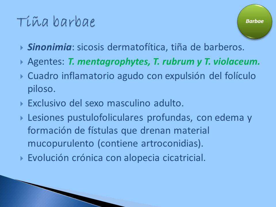 Tiña barbae Sinonimia: sicosis dermatofítica, tiña de barberos.