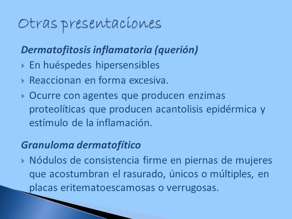 Otras presentaciones Dermatofitosis inflamatoria (querión)