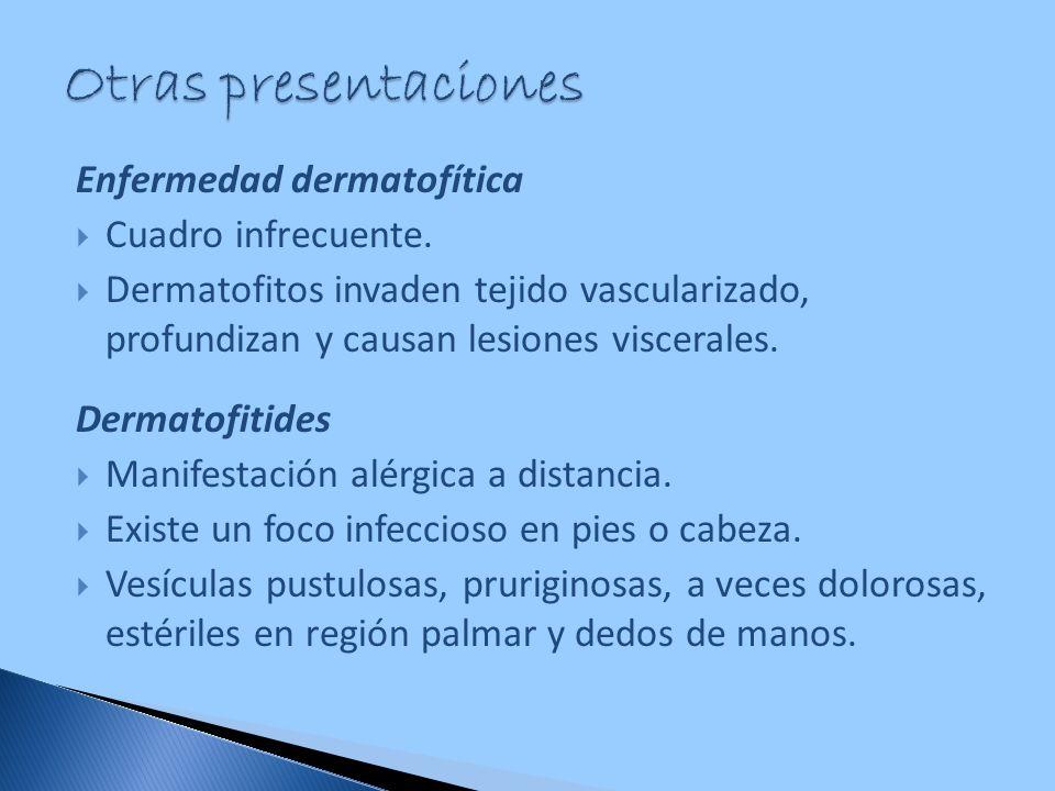 Otras presentaciones Enfermedad dermatofítica Cuadro infrecuente.