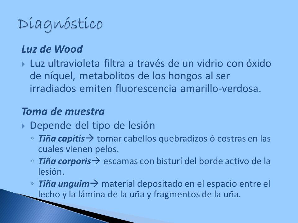 Diagnóstico Luz de Wood