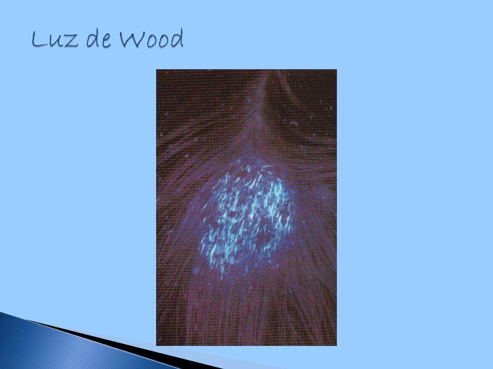 Luz de Wood