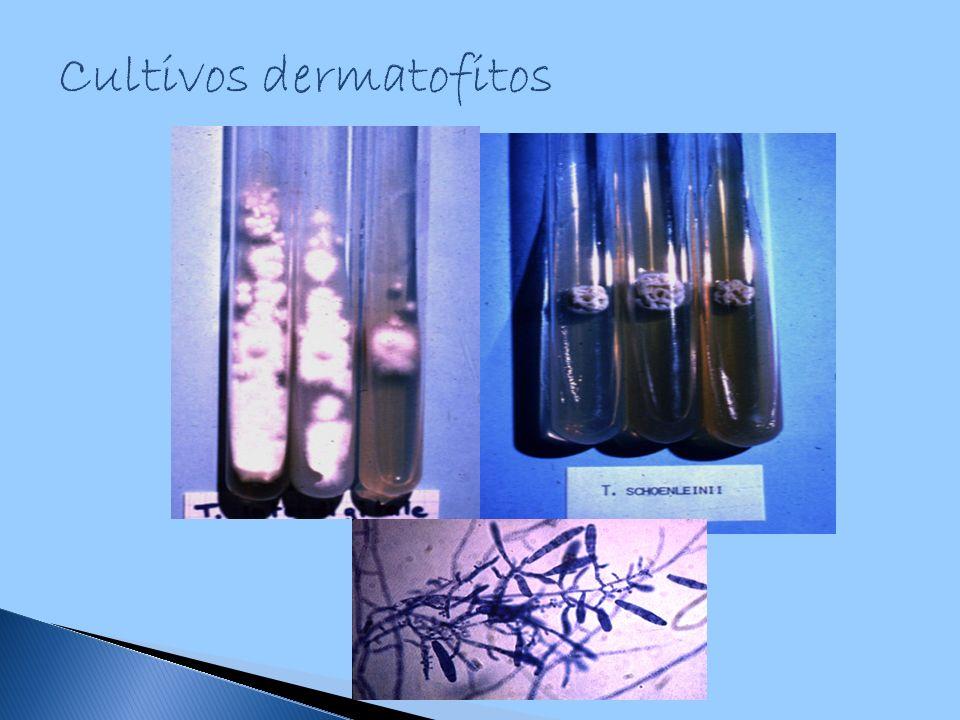 Cultivos dermatofitos