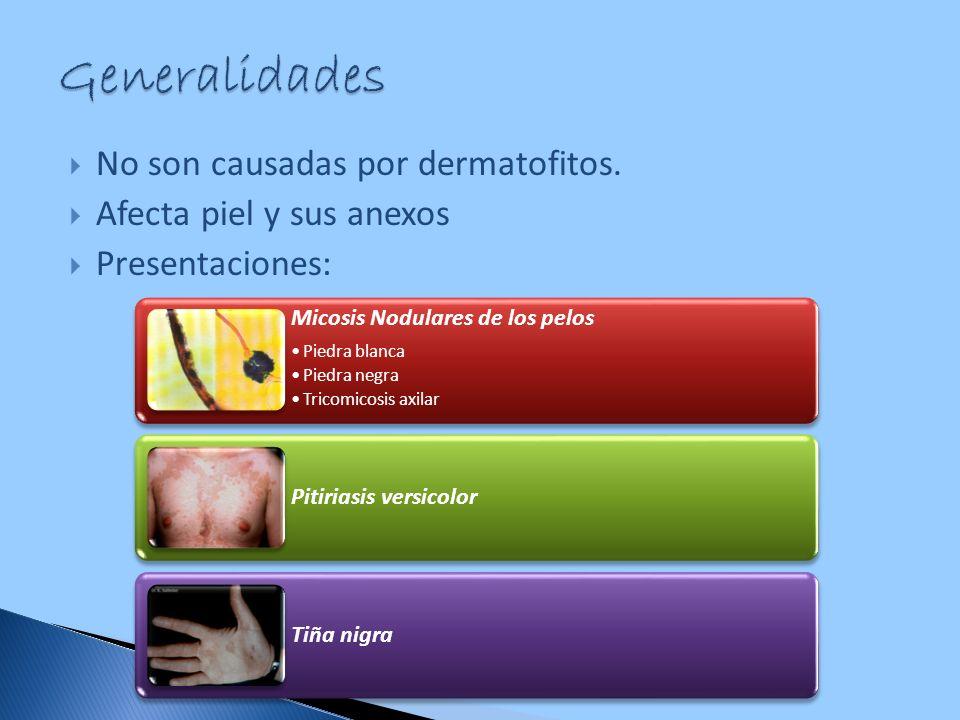 Generalidades No son causadas por dermatofitos.