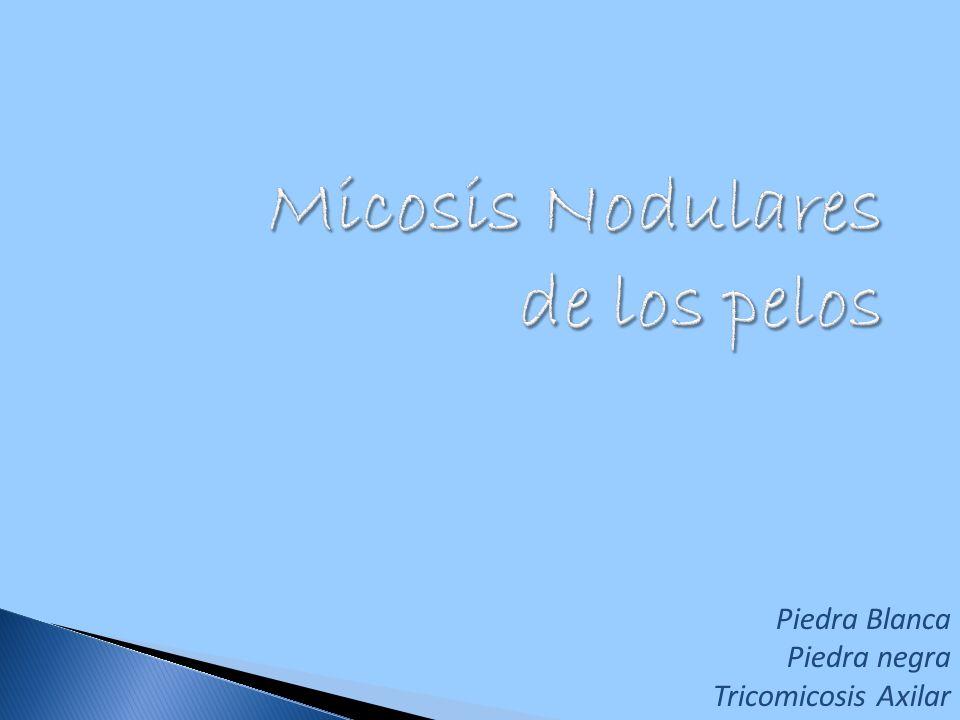 Micosis Nodulares de los pelos