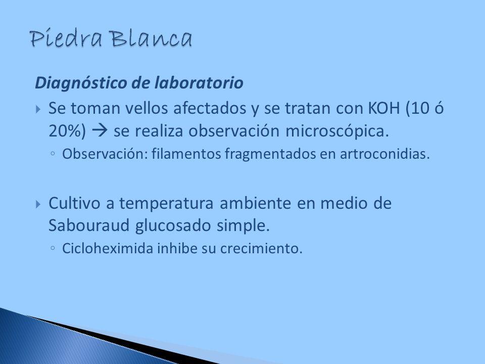 Piedra Blanca Diagnóstico de laboratorio