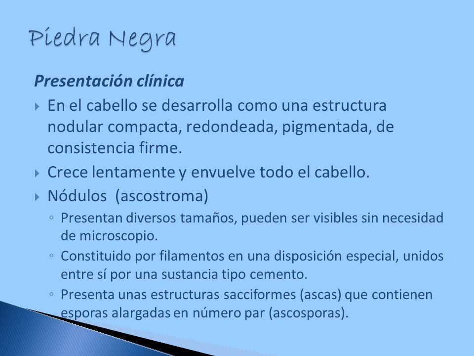 Piedra Negra Presentación clínica