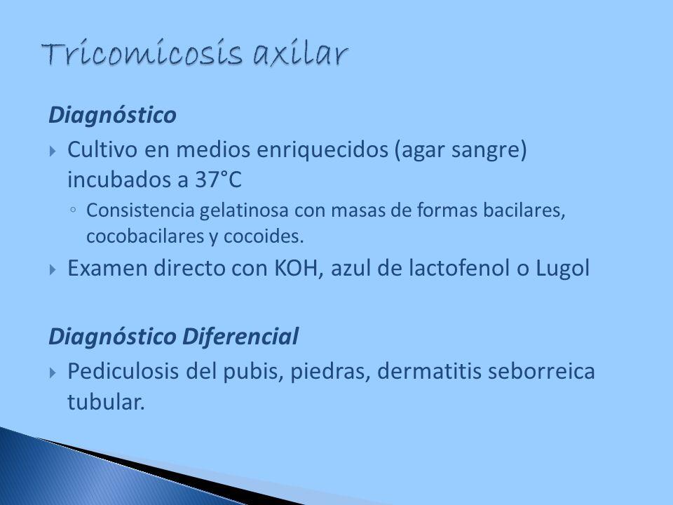 Tricomicosis axilar Diagnóstico Diagnóstico Diferencial