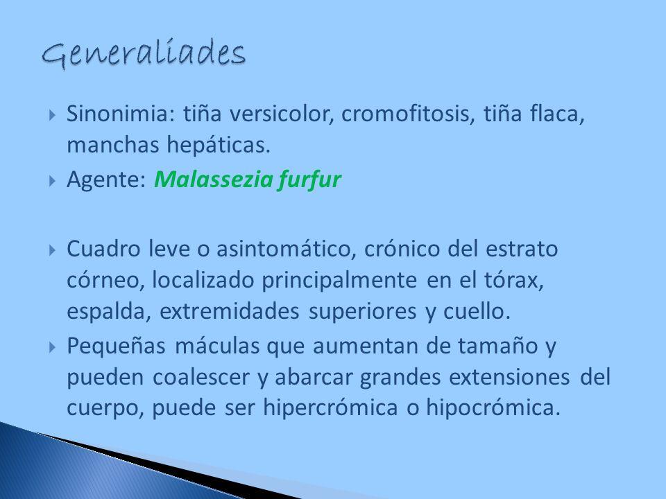 Generaliades Sinonimia: tiña versicolor, cromofitosis, tiña flaca, manchas hepáticas. Agente: Malassezia furfur.