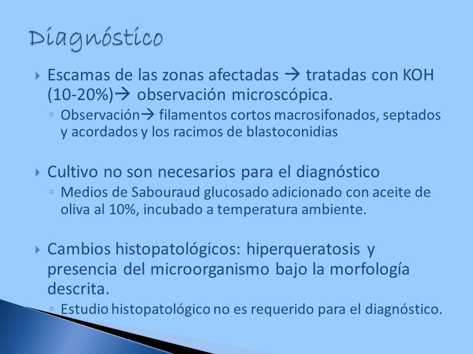 Diagnóstico Escamas de las zonas afectadas  tratadas con KOH (10-20%) observación microscópica.