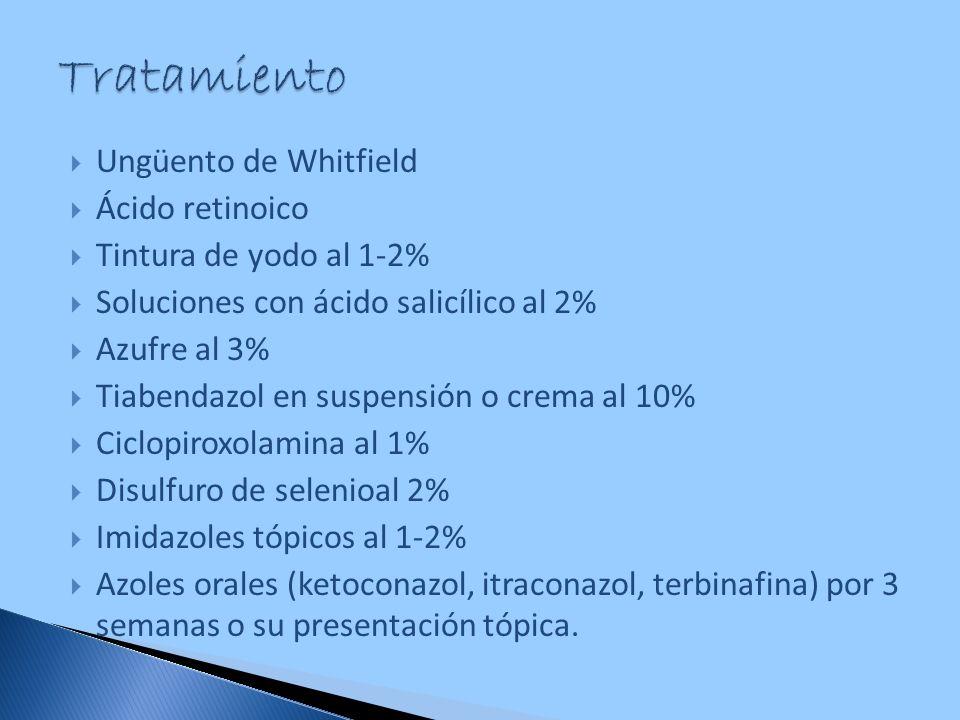 Tratamiento Ungüento de Whitfield Ácido retinoico