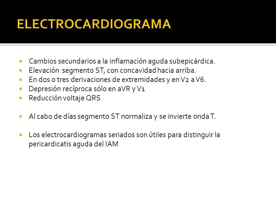 ELECTROCARDIOGRAMA Cambios secundarios a la inflamación aguda subepicárdica. Elevación segmento ST, con concavidad hacia arriba.